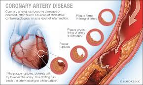 Jane's Blog Coronary Artery Disease Prevention