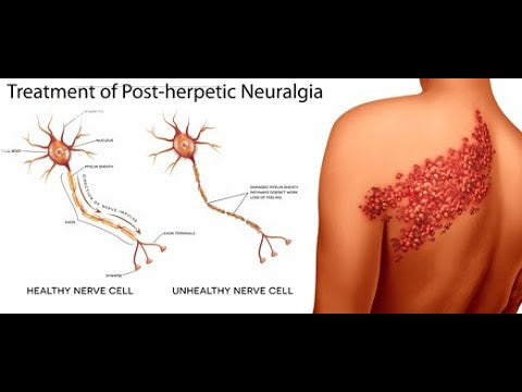 Postherpetic Neuralgia – Preventing Long Lasting Shingles Pain