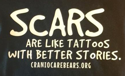 Scars are like Tattoos with Better Stories Onsies