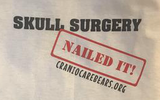 Skull Surgery Nailed it! Onsies