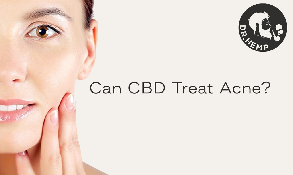 Can CBD Treat Acne?