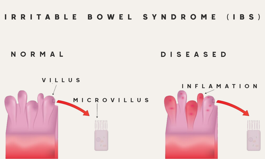 What is CBD & Irritable Bowel Syndrome
