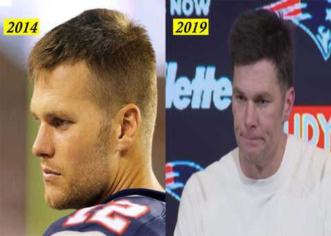 Tom Brady Hair Comparison