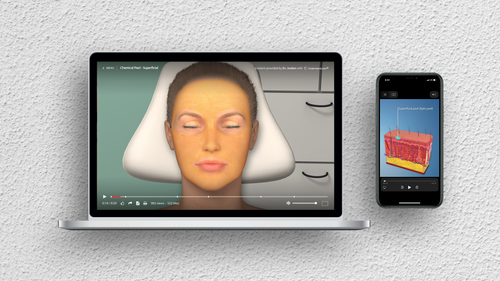 Chemical Peel - Superficial Animation on Laptop and iPhone