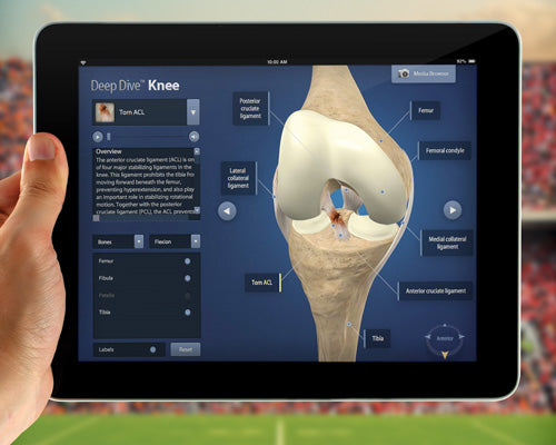 The Deep Dives™ 3D Web App Provides Unprecedented Orthopedic Education for Patients and Healthcare Professionals