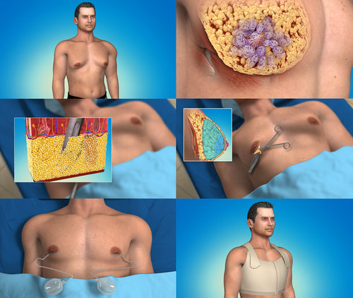 gynecomastia animation which is part of the plastic surgery library