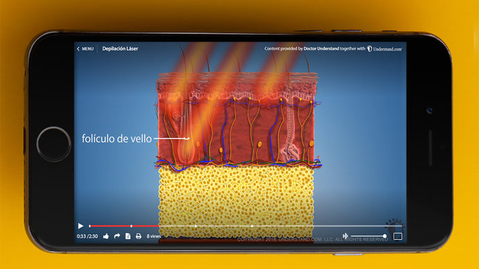 Updated HD Laser Hair Removal Animation Now Available in Spanish and Portuguese