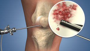 Medial Patellofemoral Ligament Reconstruction animation