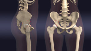 Periacetabular Osteotomy (PAO) Animation