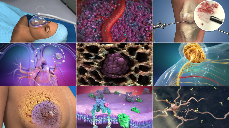 Understand.com® Releases Spine Animation Library to Educate Patients on Complex Spinal Conditions and Surgical Procedures