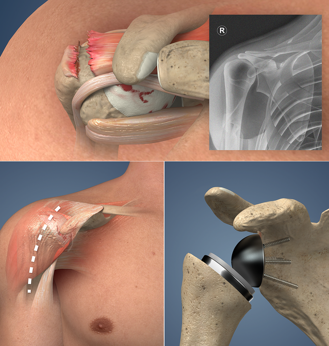 Understand.com® Expands Orthopaedic Library with the Release of Reverse Total Shoulder Replacement
