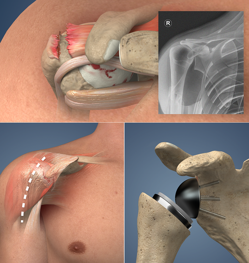 new HD Reverse Total Shoulder Replacement animation
