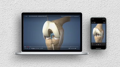 Understand.com<sup>®</sup> releases the latest HD update to our Orthopaedic Library: The Torn ACL Reconstruction - Quadriceps Tendon Graft animation