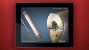 iPad showing new ACL Reconstruction, Bone-Tendon-Bone Graft animation