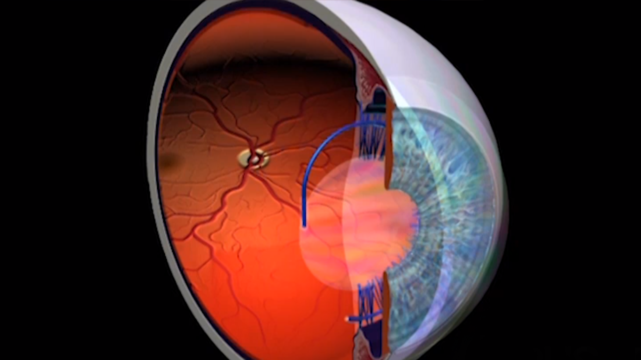 Ophthalmology Treatments