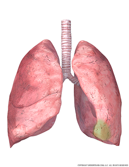 Lungs and Trachea with Lingula Highlighted Image