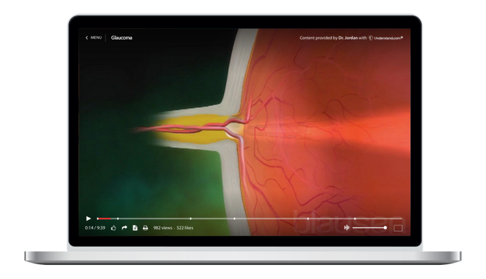 Glaucoma Animation
