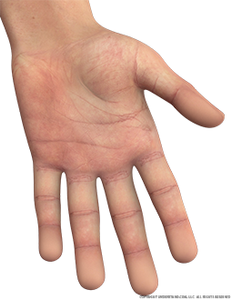 hand-male-left-palmar