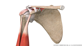 Shoulder Bursitis Anterior Image