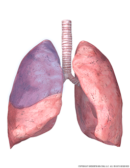 Lungs and Trachea with Superior Right Lobe Highlighted Image