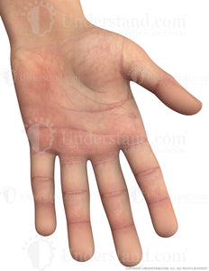 Hand Male Left Palmar Image