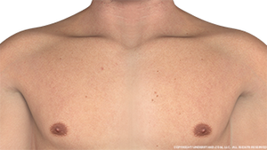 decolletage-male-anterior-image