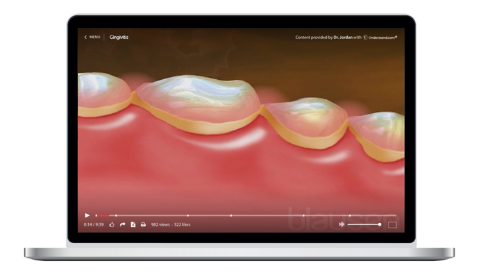 Gingivitis Animation