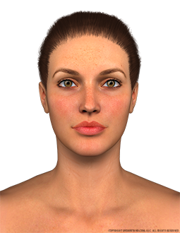 Face Female Anterior Image