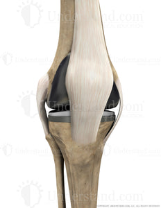 Total Knee Replacement with Ligaments Anterior Extended Image