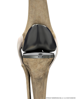Total Knee Replacement Anterior Extended Image