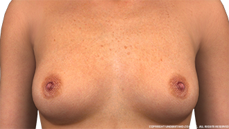 Breasts Female Anterior Image