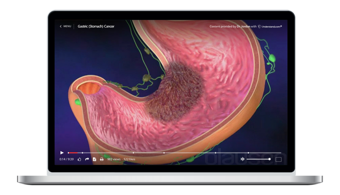 Gastric (Stomach) Cancer Animation