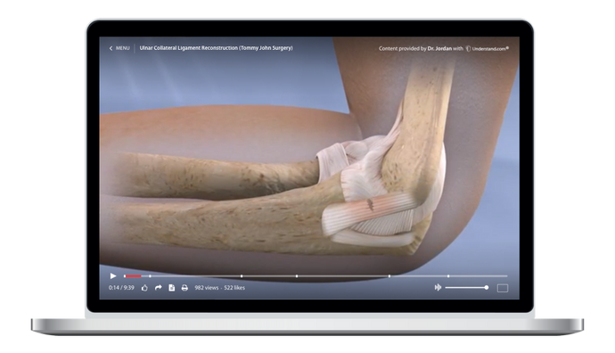 Ulnar Collateral Ligament Reconstruction (Tommy John Surgery) Animation