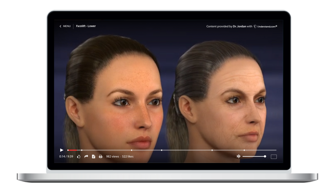 Facelift - Lower Animation