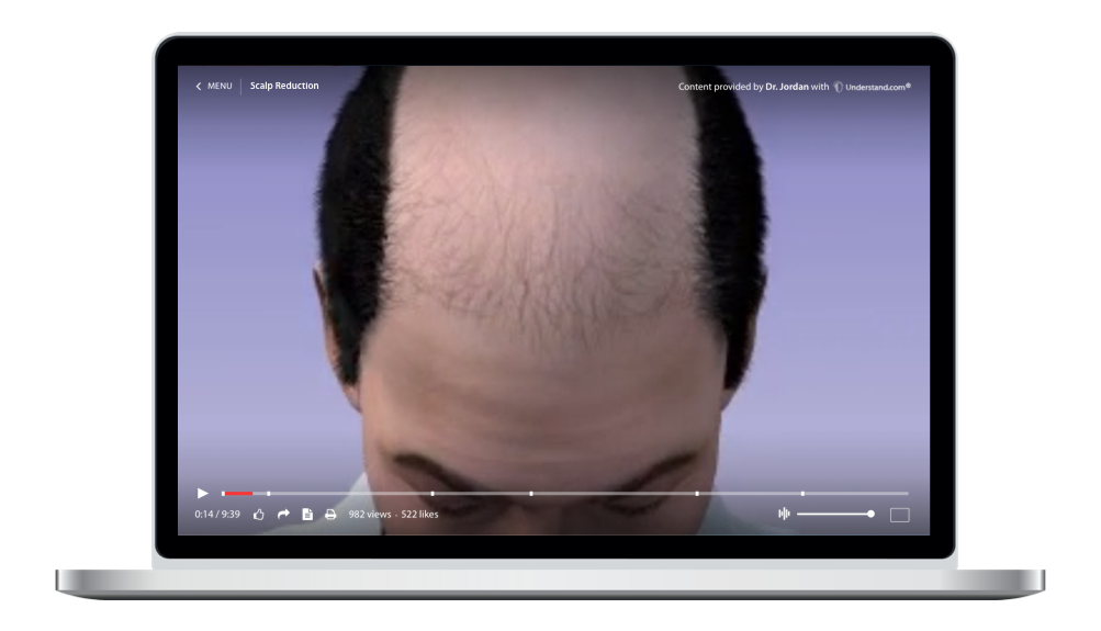 laptop showing a customized Scalp Reduction Animation