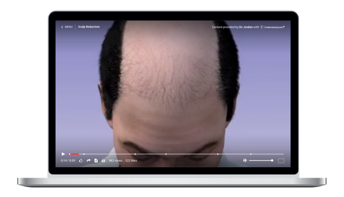 Scalp Reduction Animation