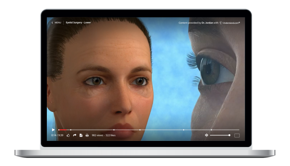 laptop showing a customized Eyelid Surgery - Lower Animation