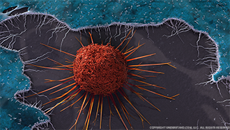 Cancer Cell Image