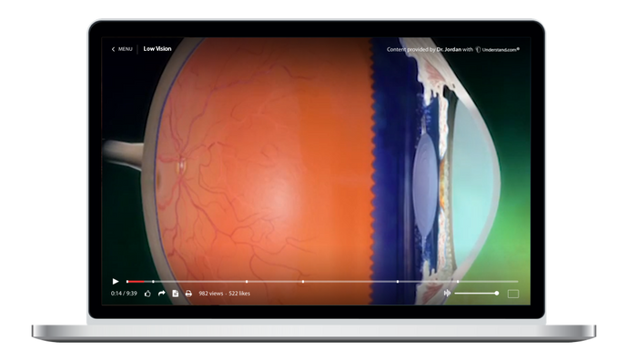 Ophthalmology Animation Library