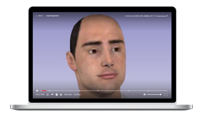 Scalp Expansion Animation