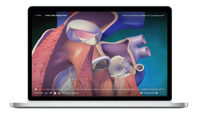 Aortic Valve Replacement Animation