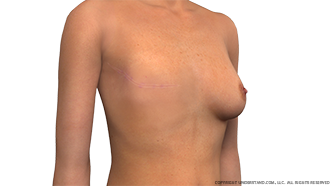 Before Breast Reconstruction Image