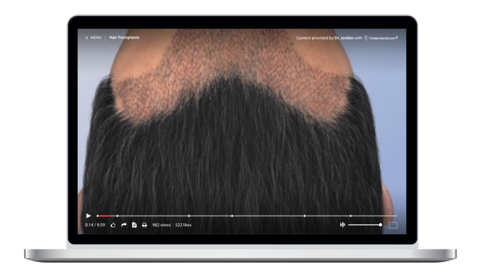 Hair Transplants Animation