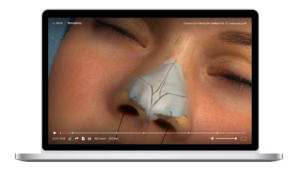 laptop showing a customized Nose Reshaping (Rhinoplasty) Animation