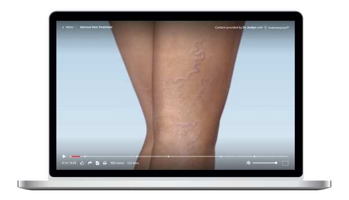 Sclerotherapy Animation