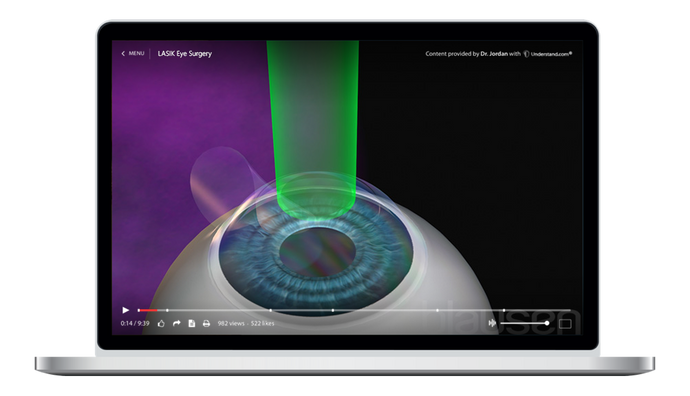 LASIK Eye Surgery Animation