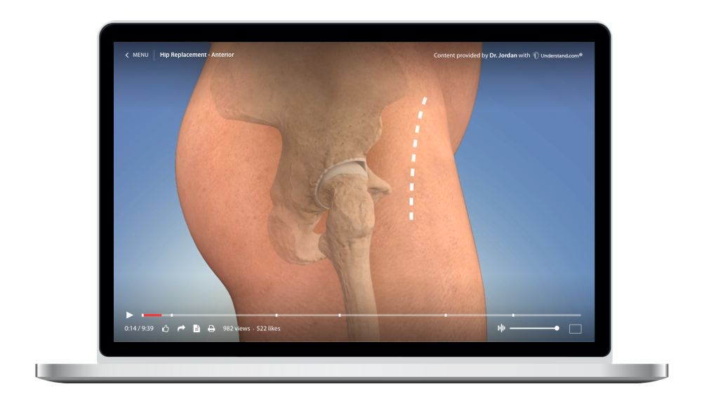laptop showing a customized Hip Replacement - Anterior Animation