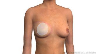 Breast Reconstruction Implant after Flap Procedure Image