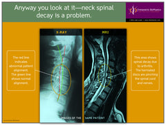 Cervical X-Ray vs. MRI Disc Herniation