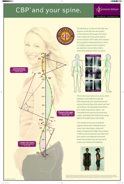 Ideal Posture, CBP & Your Spine